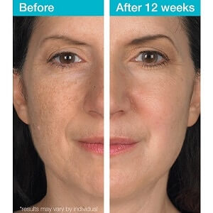 Before and After dark spot correcting